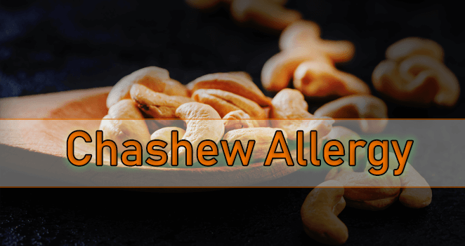 Cashew Allergy Treatment