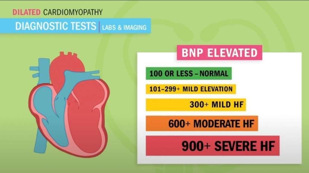 What Is Heart Failure And Heart Failure Nursing Diagnosis ...